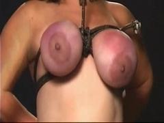 Tit treatment SMG